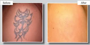 medical grade laser tattoo removal cheshire north wales laser