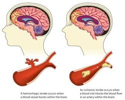 Can Stroke Cause Blindness Stroke Ceu Online Continuing Education Course