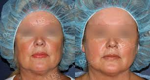light treatment for skin laser light therapy