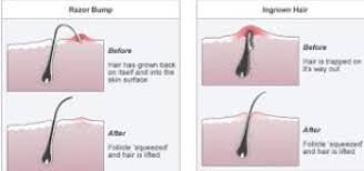 types of ingrown hair ingrown armpit hair pictures symptoms painful bumps cyst deep