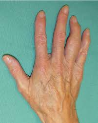 right ring osteoarthritis causing a deformity of the right ring proximal