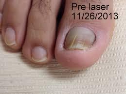 laser fungal nail treatments podiatrist in gainesville va
