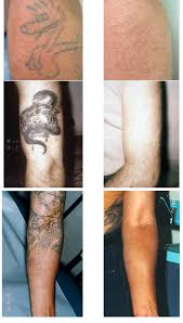 tattoo laser removal cost tattoo collections