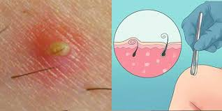 do ingrown hair hurt what is ingrown hair pictures symptoms severe hurting itchy