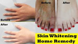 skin whitening home remedy 100 effective for dark skin skin