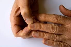 nail ridges symptoms causes treatments
