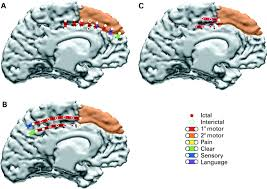Human Brain Mapping Reorganisation Of Cortical Motor And Language Distribution In
