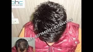 hair bonding hair bonding in delhi ncr noida gurgaon india