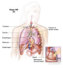 non small cell lung cancer treatment pdq u2014patient version