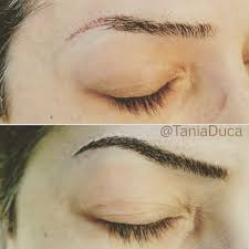 Hair Extensions Kitchener by Microblading Before After 3 Hair Studio Spa Medispa Euro