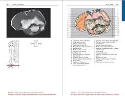 Mri Sectional Anatomy Sawagp Pocket Atlas Of Sectional Anatomy Ct U0026 Mri 3ed All Volumes