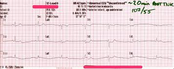 posterior stemi and prehospital tenecteplase tnk acls medical