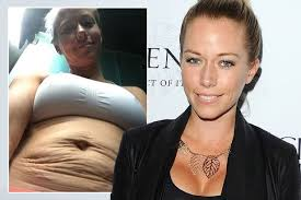 s kendra wilkinson shows stretch marks on s day