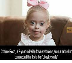 Syndrome Of A Down Meme - facts book connie rose a 2 year old with down syndrome won a