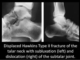 Subtalar Joint Fracture Avn Talus Treated By Retrograde Nail Fusion A Case Report