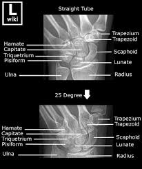 Axial Shoulder Anatomy 17 Best Images About Anatomy On Pinterest Axial Skeleton