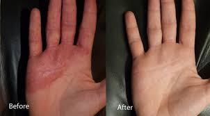 light treatment for eczema eczema light therapy is safe and effective uvb ls
