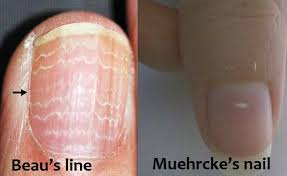 what causes white lines in nails glamour nail salon