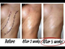 tattoo removal methods 2017 best methods tattoo removal best