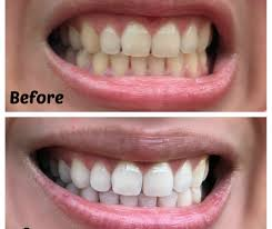 Dentist That Do Teeth Whitening Whitening Bowyegs Awesome Home Teeth Bleaching Amazon Com Dr