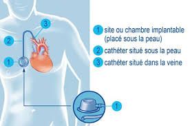 injection chambre implantable chimiothérapie une chambre implantable crtt cancérologie