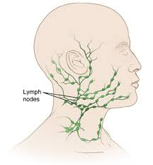 excisional biopsy neck lymph node luke s health system