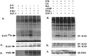 cat orie si e auto b cyclic nucleotide phosphodiesterase 3b is a downstream target of