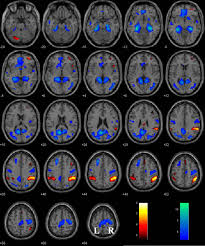 the right superior frontal gyrus and individual variation in