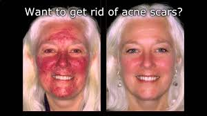 light therapy for acne scars dermtv removing acne scars dermtv com 61 pimple scars removal