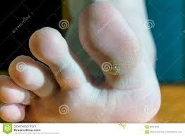 planters wart on foot plantar wart on big toe visible black dots warts stock image