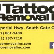 tattoo removal inc tattoo removal 10 reviews tattoo removal 5580 imperial hwy