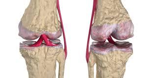 Anatomy Of Human Body Bones Overview Of Three Common Bone Disorders Osteoarthritis
