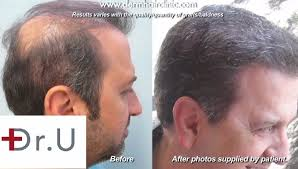 hair transplant america body hair to head transplant with ugraft fue technology dr umar