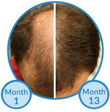rogaine for women success stories is minoxidil treatment for hair growth beneficial see pros and cons