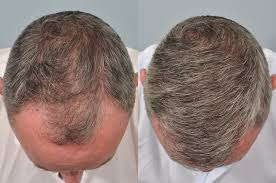 hair transplant month by month pictures hair transplant 6 months post op hrbr hair clinic