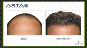 how thick is 1000 hair graft artas hair transplants in sacramento precision md