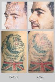 tattoo removal clinic images tattoo world pinterest tattoo