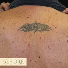 tattoo prices san francisco tattoo removal sf aesthetics and laser center