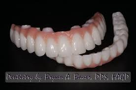 What Is Root Bridge Implant Supported Dentures Denture On Dental Implants Bauer Smiles