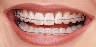 Comfort Dental Orthodontics Bakersfield Ca Blog Dr Jared Gianquinto U2013 Orthodontist Bakersfield Ca