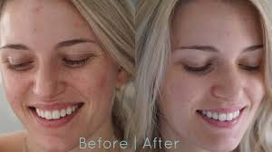 neutrogena light therapy acne mask before and after neutrogena light therapy acne mask review morgan bullard