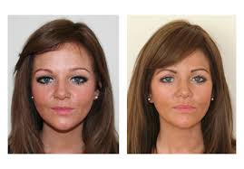 cost u0026 pricing of permanent makeup tattoos and medical scalp