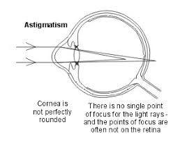 astigmatism causes and treatment patient