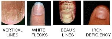why do some doctors look at fingernails to see if you are healthy