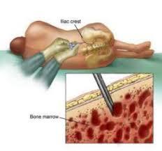 Obat Tbc obat tbc tulang
