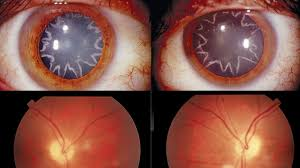 Blindness After Cataract Surgery Cataract Surgery Videos At Abc News Archive At Abcnews Com