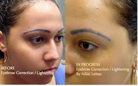 tattoo eyeliner boston eyebrow correction permanent makeup pigment fading and removal in