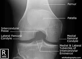 Interactive Knee Anatomy Radiographic Anatomy Knee Intercondylar Radiographic Anatomy