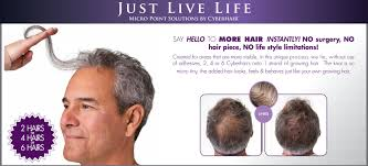 non surgical hair transplants 400 instant coverage for see thru scalp