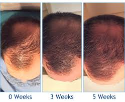 Hair Loss Cure For Women Platelet Rich Plasma U0026 Acell Hair Loss Treatments